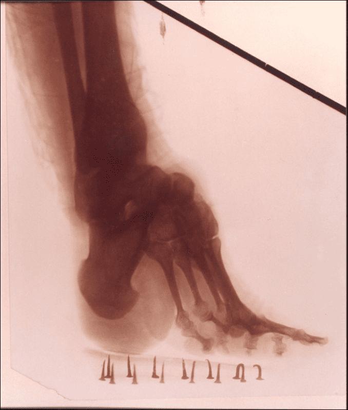 Röntgenaufnahme des Lotusfußes einer 32-jährigen Frau